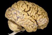 مغز های خارق العاده