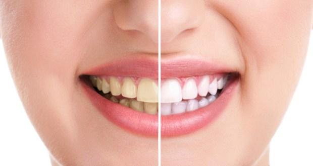 ۱۰ علت بدرنگی دندانها و راههای جلوگیری از آنها