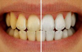 با زردی دندان ها چه کنیم؟