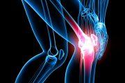 چطور با درد همیشگی آرتروز زندگی کنیم؟