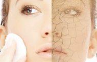 خشکی پوست در زمستان از عوارض حمام روزانه