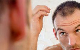 نکاتی برای قبل و بعد از جراحی پیوند موی طبیعی