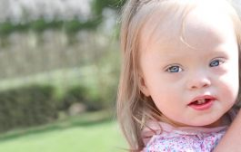 غربالگری های سندرم داون در بارداری