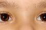 استرابیسم (انحراف چشم یا لوچی)