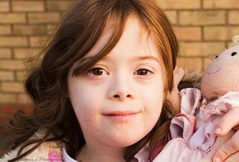 سندرم دان (Down,s syndrome)