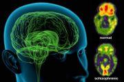 از اسکیزوفرنی بدانیم