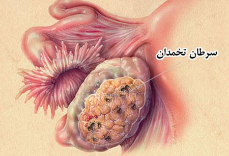 ovarian-cancer-002
